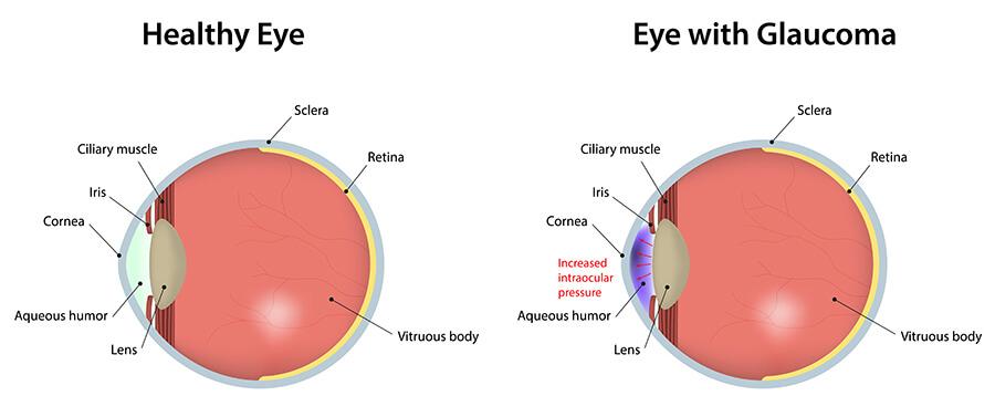 Glaucoma Surgery Chart