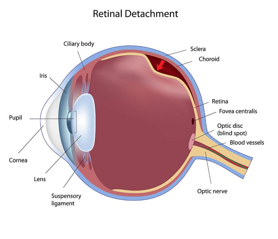 Chart Showing Retinal Detachment