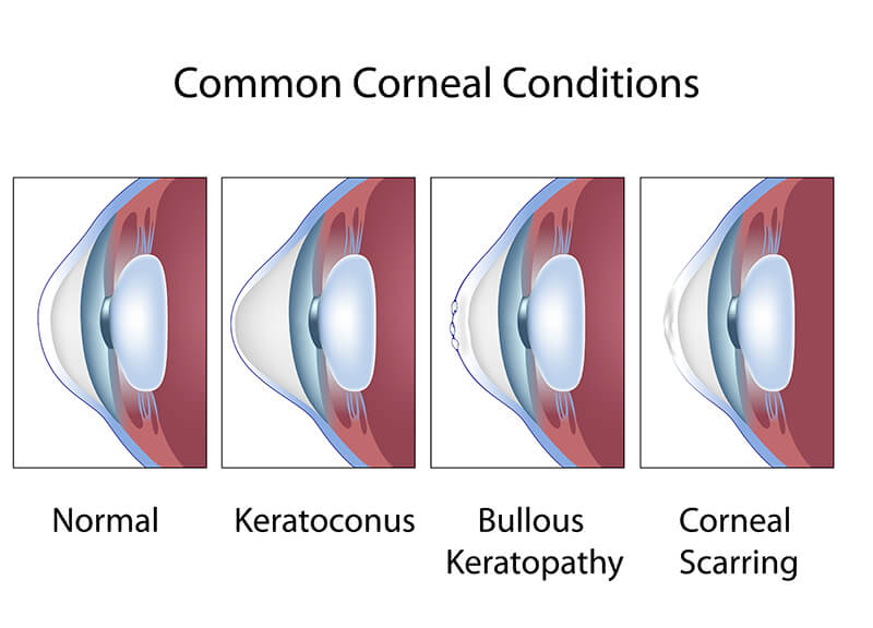 Chart showing some common corneal conditions